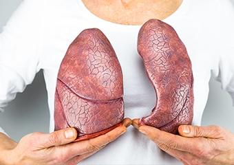 Kapalı yöntem akciğer kanseri ameliyatları: Vats lobektomi