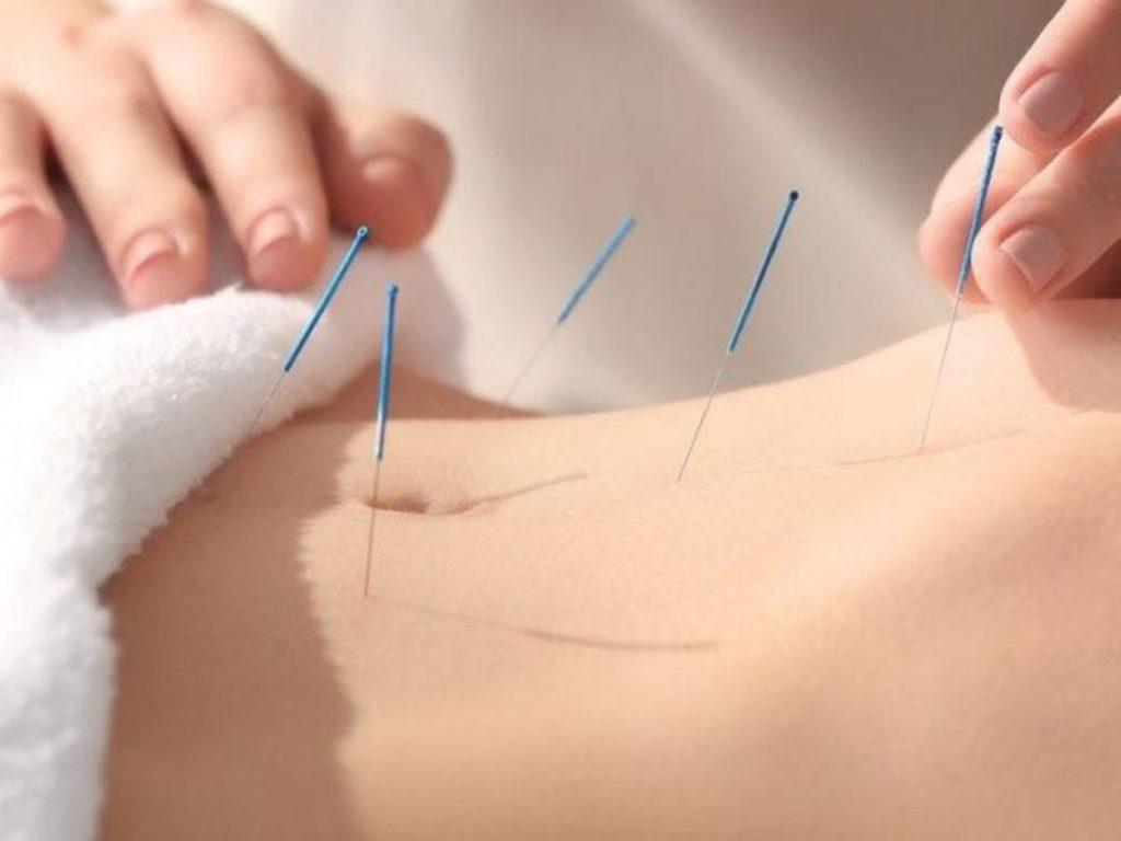 Akupunktur Nasıl Yapılır?